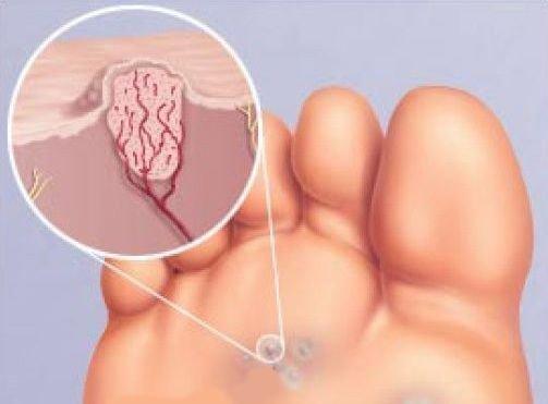Папилломы на теле причины появления у женщин