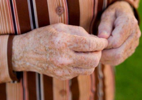 Возрастная пигментация на руках
