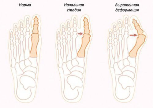 Заговор о шишек на ногах