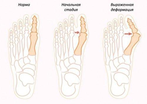 Заговор от косточки на ногах