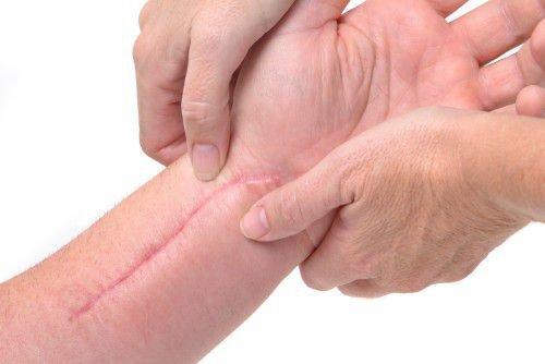 Заговор для заживления ран на лице и теле