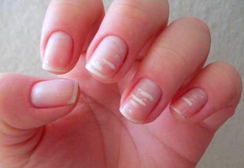 Что означают белые пятна на ногтях примета
