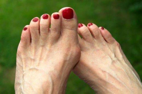 Заговоры от косточки на ноге
